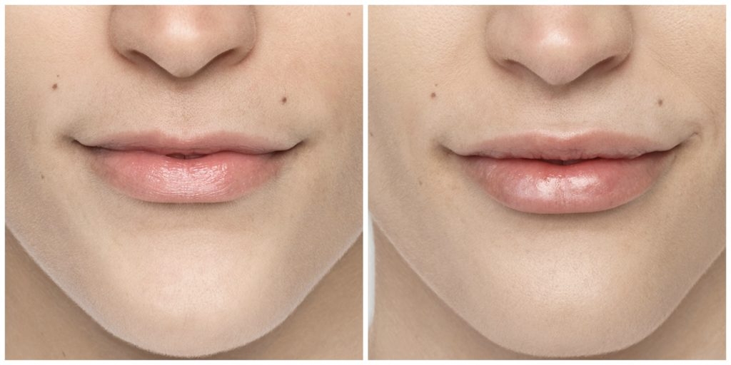 Fillers for Lips and Cheeks | Affinity Med Spa