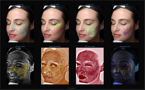Visia Complexion Analysis Overview